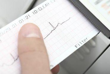 electrocardiograma_0