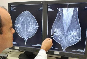 mamografia1
