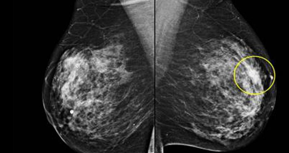 mamografia3